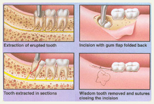 how to stop wisdom tooth pain after extraction